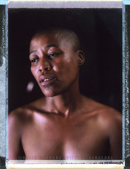 """A posed portrait of Milli, 35. In April 2010 Milli went to stay with a friend. While waiting for her friend to return home, she went to the landlord and asked for a light for her cigarette. He dragged her into his shack and said: """"You think you are man! I'm going to make you pregnant and I'm going to kill you"""". He strangled Lilli with a piece of wire until she lost consciousness """"and then he did what he was doing, for hours!"""", """"I tried screaming"""". Neighbours eventually kicked in the window and held the man until the police arrived. The police arrested him but he was released on ZAR 400 bail (around US$40). He didn't appear in court for his hearing. He was on the run. Free Gender, a black lesbian organisation working to end homophobia, based in the township of Khaylitsha, Cape Town searched for the rapist posting pamphlets. It took a year to find him. When asked why the police didn't search for him, Milli says: """"they don't have time to listen to you when you go to them, when it comes to homosexuals, they take their time"""". """"I just thank God that I am alive. I thought I was going to die."""" South Africa. November 2014.  While many countries around the world are legally recognizing same-sex relationships, individuals in nearly 80 countries face criminal sanctions for private consensual relations with another adult of the same sex. Violence and discrimination based on sexual orientation or gender expression is even more widespread. Africa is becoming the worst continent for Lesbian, Gay, Bi-sexual, Transgender, Queer, Inter-sex (LGBTQI) individuals. More than two thirds of African countries have laws criminalizing consensual same-sex acts. In some, homosexuality is punishable by death. In Nigeria new homophobic laws introduced in 2013 led to dramatic increase in attacks. Under Sharia Law, homosexuality is punishable by death, up to 50 lashes and six months in prison for woman; for men elsewhere, up to 14 years in prison. Same sex acts are ille"""