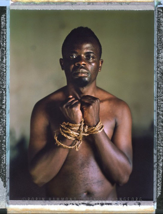 "A posed portrait of 26 year old Kamarah Apollo, a gay activist in Uganda. Apollo lists the discrimination he has faced: ""In 2010 I was chased from school when they found out that I was in relationship with fellow male student. I was also disowned by my family because of my sex orientation. I left home with no option but to join sex work for survival and fight for our gay and sex workers' rights because I was working on streets. I was also arrested several times because police officers thought I was promoting homosexual acts in Uganda. I have been tortured several times by homophobic people and police officers by tying me with ropes and being beaten, pierced by soft pins, nicknamed, a lot of psychological torture by local leaders and police. I can't forget when I was raped in the police cell by prisoners, after all that I decided to start an organization with some campus students. An msm organization called kampuss liberty Uganda. During the petitioning of the anti-homosexuality act I appeared on local televisions so much and it became hard to me to a permanent place to stay because the majorities are homophobic. I also appeared in local newspapers as a promoter of homosexuals so right now it's hard for me to get a safe place to rent yet I am not working. I was fired from work because I am gay."" Uganda, September 2014.  While many countries around the world are legally recognizing same-sex relationships, individuals in nearly 80 countries face criminal sanctions for private consensual relations with another adult of the same sex. Violence and discrimination based on sexual orientation or gender expression is even more widespread. Africa is becoming the worst continent for Lesbian, Gay, Bi-sexual, Transgender, Queer, Inter-sex (LGBTQI) individuals. More than two thirds of African countries have laws criminalizing consensual same-sex acts. In some, homosexuality is punishable by death. In Nigeria new homophobic laws introduced in 2013 led to dramatic increase in attacks. Under Sharia Law, homosexuality is punishable by death, up to 50 lashes and six months in prison for woman; for men elsewhere, up to 14 years in prison. Same sex acts are illegal in Uganda. A discriminatory law was passed then struck down and homophobic attacks rose tenfold after the passage of the Anti-Homosexuality Act. In Cameroon it is also illegal. More cases against suspected homosexuals are brought here than any other African country. In stark contrast with the rest of the continent, same sex relationships are legal in South Africa. The country has the most liberal laws toward gays and lesbians on the continent, with a constitution guaranteeing LBGTQI rights. Because of this, LGBTQI Africans from all over the continent fleeing persecution have come to South Africa. Despite these laws, many lesbians have been victims of 'corrective rape' and homosexuals have been murdered for their sexuality. Homophobia is by no means just an African problem. In Russia, politicians spread intolerance. In June 2013 the country passed a law making ""propaganda"" about ""non-traditional sexual relationships"" a crime. Attacks against gays rose. Videos of gay men being tortured have been posted online. In predominantly Muslim Malaysia, law currently provides for whipping and up to a 20-year prison sentence for homosexual acts involving either men or women. Increased extreme Islamification in the Middle East is making life more dangerous for gay men there, as evidenced by ISIS's recent murders of homosexual men. While homophobic discrimination is widespread in Lebanon, life is much safer there than Iran, Iraq, and Syria from which refugees are fleeing due to homophobic persecution. Photo Robin Hammond/Panos for Witness Change"