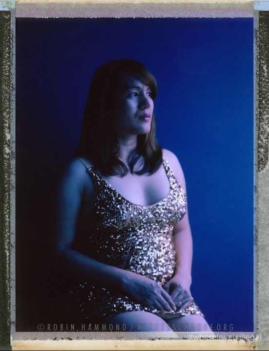 """A posed portrait of 36 year old Erina who was forced to become a sex worker to survive. Like many tans-gender women in Malaysia, she has faced discrimination and violence on numerous occasions. Aside from the casual verbal abuse, being forced to wear male clothes in a job she had in a hotel, her family members forcibly cutting her hair short, she has been arrested and beaten. She has also been raped, once by three men who also beat her with sticks. She didn't make a report to the police """"The police are bad too"""" she says, """"and the next thing you know, you'll be the one who is arrested"""". On one occasion, when she was arrested for cross-dressing (a crime in some parts of Malaysia), she was taken to the police cells. One of the inmates forced her to perform oral sex on him. She was transferred to another prison where, the next day, she was raped. One of the inmates penetrated her. He was not wearing a condom. Erin complained to the police, but they threatened to beat her and sent her back into the same cell with the man who raped her. For transgender sex workers, rape is common. Most feel they cannot go to the police as they are considered men and there is a perception that men cannot be raped. Worse, they will face further persecution from the police should they report a case of sexual violence. Kuala Lumpur, Malaysia. January 2015.  While many countries around the world are legally recognizing same-sex relationships, individuals in nearly 80 countries face criminal sanctions for private consensual relations with another adult of the same sex. Violence and discrimination based on sexual orientation or gender expression is even more widespread. Africa is becoming the worst continent for Lesbian, Gay, Bi-sexual, Transgender, Queer, Inter-sex (LGBTQI) individuals. More than two thirds of African countries have laws criminalizing consensual same-sex acts. In some, homosexuality is punishable by death. In Nigeria new homophobic laws introduced in 2013 led to dramatic increa"""