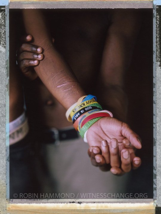"A posed posed portrait of 'E' a young gay man in Uganda who regularly self-harms. Some people persecuted for their sexuality or gender identity become depressed. Uganda, September 2014.  While many countries around the world are legally recognizing same-sex relationships, individuals in nearly 80 countries face criminal sanctions for private consensual relations with another adult of the same sex. Violence and discrimination based on sexual orientation or gender expression is even more widespread. Africa is becoming the worst continent for Lesbian, Gay, Bi-sexual, Transgender, Queer, Inter-sex (LGBTQI) individuals. More than two thirds of African countries have laws criminalizing consensual same-sex acts. In some, homosexuality is punishable by death. In Nigeria new homophobic laws introduced in 2013 led to dramatic increase in attacks. Under Sharia Law, homosexuality is punishable by death, up to 50 lashes and six months in prison for woman; for men elsewhere, up to 14 years in prison. Same sex acts are illegal in Uganda. A discriminatory law was passed then struck down and homophobic attacks rose tenfold after the passage of the Anti-Homosexuality Act. In Cameroon it is also illegal. More cases against suspected homosexuals are brought here than any other African country. In stark contrast with the rest of the continent, same sex relationships are legal in South Africa. The country has the most liberal laws toward gays and lesbians on the continent, with a constitution guaranteeing LBGTQI rights. Because of this, LGBTQI Africans from all over the continent fleeing persecution have come to South Africa. Despite these laws, many lesbians have been victims of 'corrective rape' and homosexuals have been murdered for their sexuality. Homophobia is by no means just an African problem. In Russia, politicians spread intolerance. In June 2013 the country passed a law making ""propaganda"" about ""non-traditional sexual relationships"" a crime. Attacks against g"
